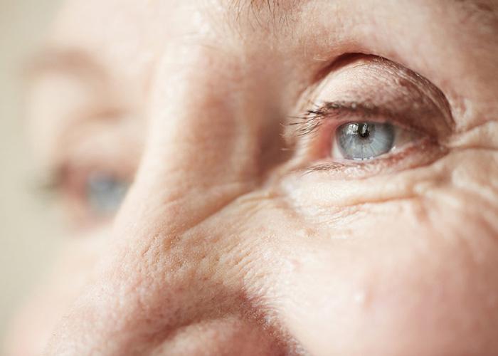 فواید اسید هیالورونیک و کاربردهای آن برای پوست