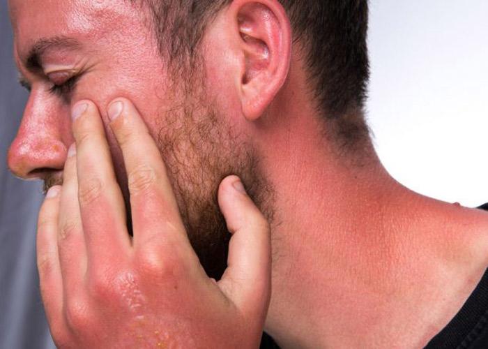 مزایای استفاده از سرم ویتامین C در روال مراقبت از پوست