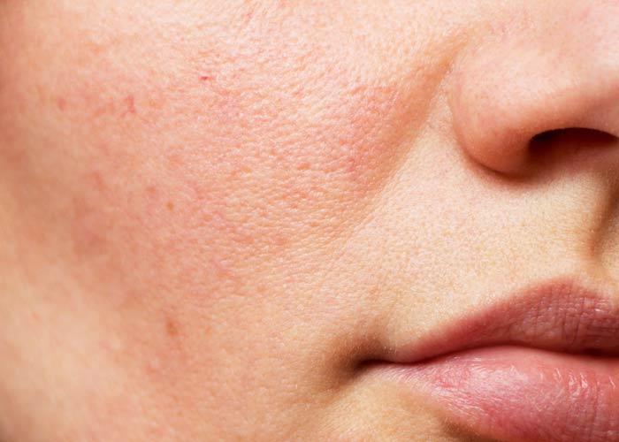 مقایسه قابض و تونر: کدام یک برای پوست شما مناسب است؟